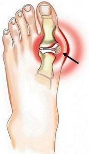 Подагрический артрит плечевого сустава врачи которые лечат суставы